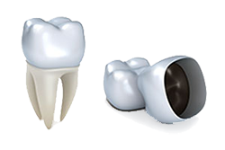 Ivy League Dental | Englishtown Dentist | Dentist in Marlboro NJ | Dental Crowns